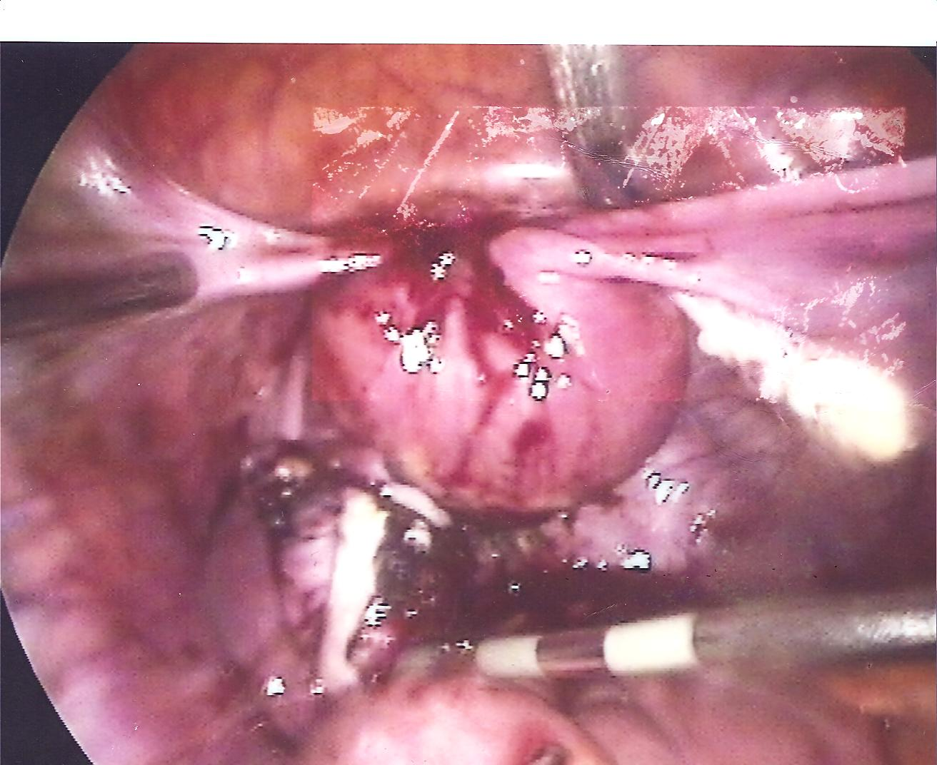 22 Laparoscopic removal of left endometrioma