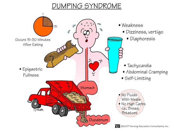 1aaDumping syndrome
