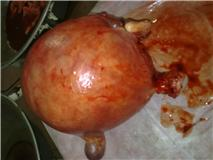 2 Fibroid uterus